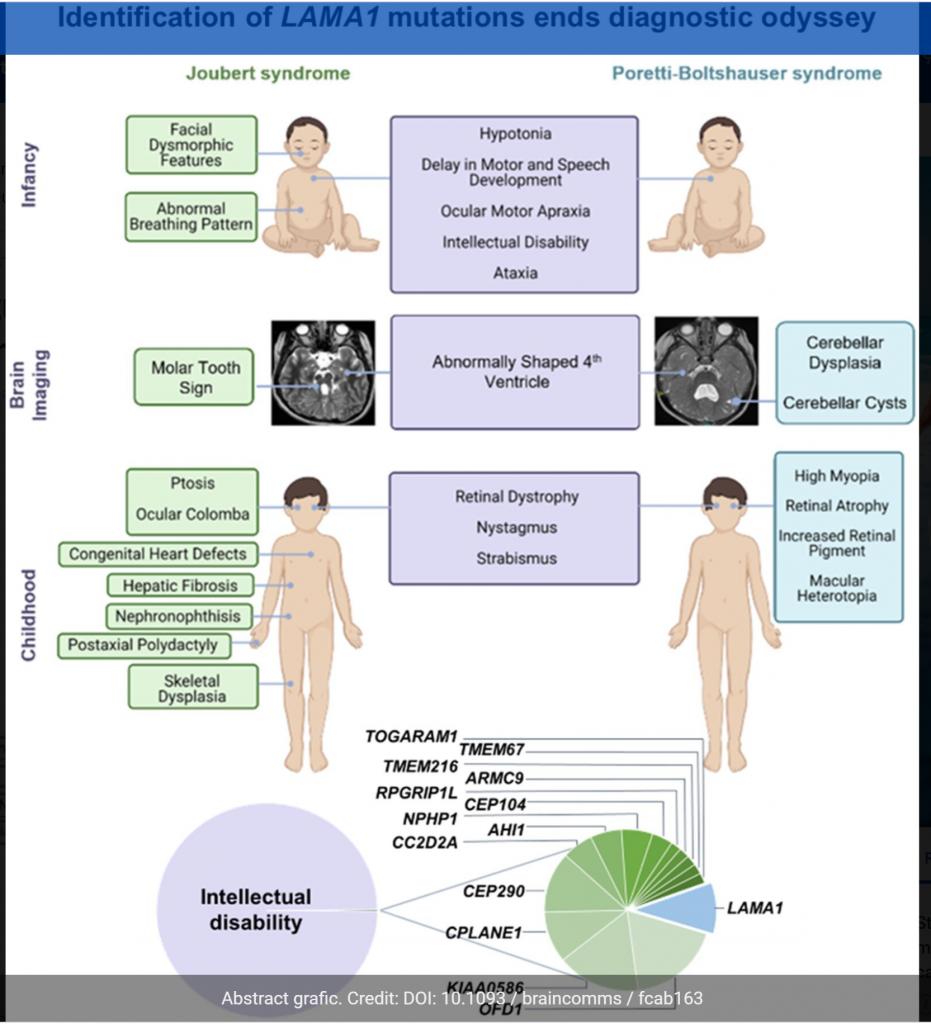 Comparatie intre Sindromul Joubert si boala Poretti-Boltshauser